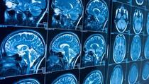 Najzagonetniji simptomi COVID-a: Šta su otkrile snimke mozga zaraženih