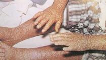 Kako je Jugoslavija pobijedila virus Variola vere i vakcionisala 18 miliona