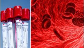 Ovo je zlatna krvna grupa: Ima je samo 43 ljudi na cijelom svijetu