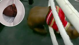 Lice bivše UFC zvijezde nakon nokauta izgleda neprepoznatljivo