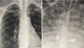 Pogledajte pluća dva pacijenta koji imaju koronu: Jedan se cijepio, drugi nije