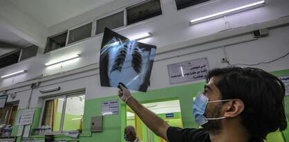 WHO: Pandemija koronavirusa će trajati i u 2022. godini