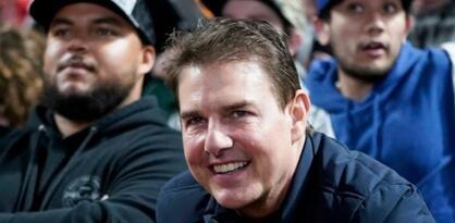 Estetski hirurzi o licu Toma Cruisea: Izgleda kao vjeverica